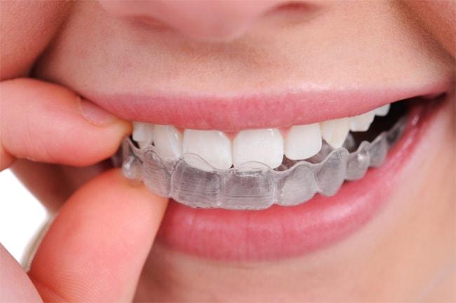отбеливание зубов фотоотбеливание или лазерное