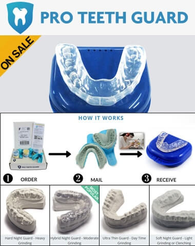 Top 10 Mouth Guards For Grinding Teeth