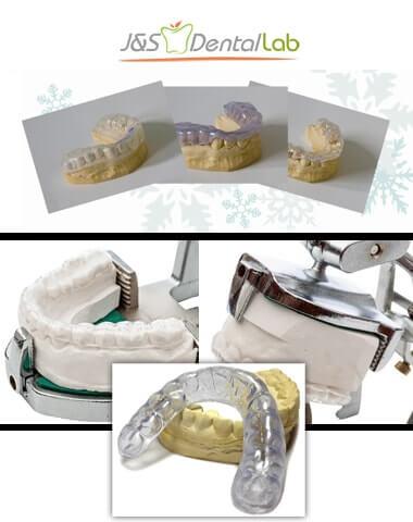 J&S Dental Lab – Custom Night Guards   Full Review