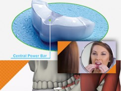 """GrindReliefN Dental Guard – Full Review (Formerly known as """"GrindGuardN"""")"""