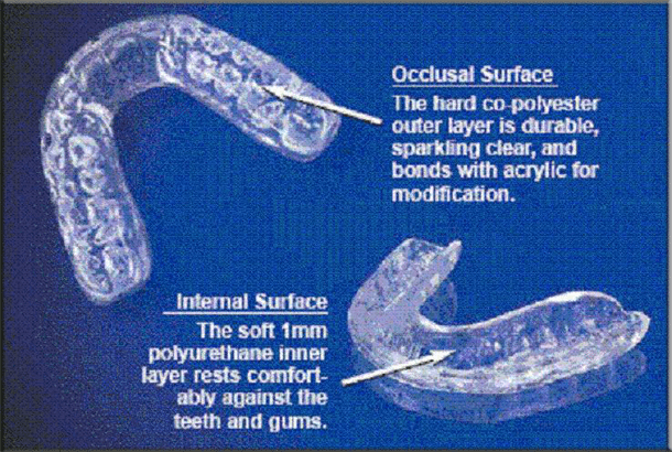 Do it yourself dental impression kit custom comfort night guard is designed to relieve pressure from night teeth grinding and clenching it can be manufactured for the upper or lower teeth solutioingenieria Choice Image