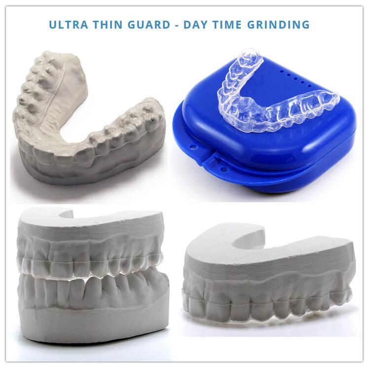 Pro Teeth Guard - Dental Custom Night Guard | Full Review
