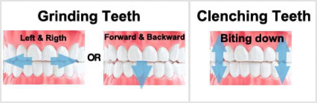 Clenching Teeth Vs Grinding Teeth Are They The Same